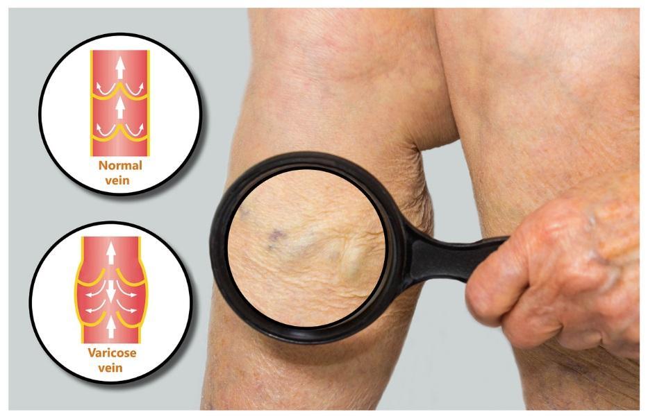 What Causes Venous Disease?